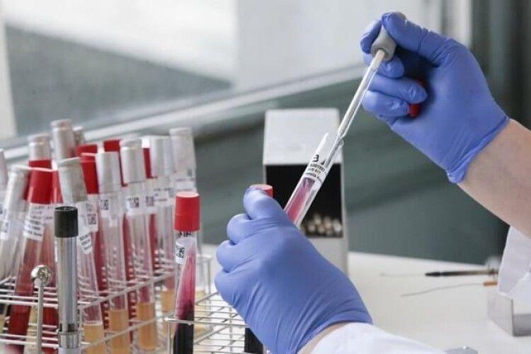 Коронавірус на Волині: яка ситуація в області і скільки людей хворіє