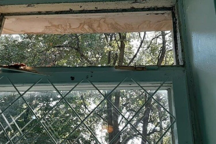 Під час уроку на учня впала віконна рама: фото пораненого хлопчика