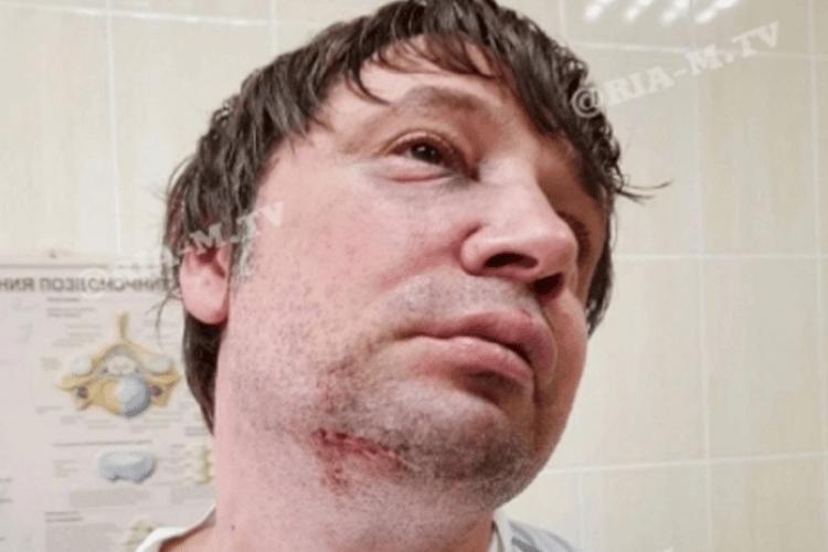 Обізвав хірурга алкоголіком, а той дав копняка: бійка у лікарні потрапила на камеру (Відео моменту)