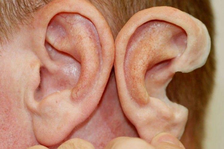 Вченим вдалося виростити... нові вуха!