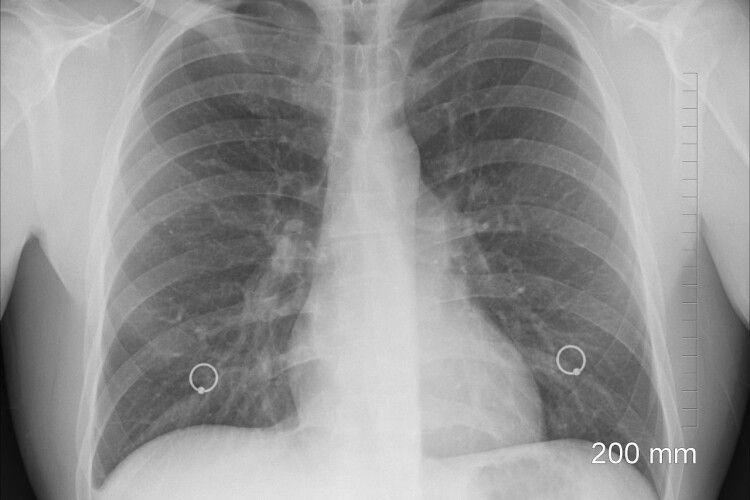 Лікування пневмонії може погіршити стан пацієнта