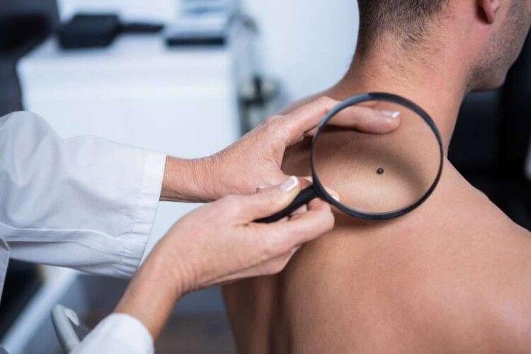 Жителі Нововолинської громади мають змогу безкоштовно перевіритись на рак шкіри
