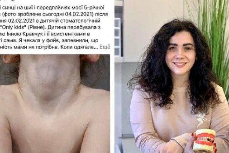 У Рівному 5-річна дівчинка вийшла від стоматолога з синцями та краплинами крові на шиї (Фото)