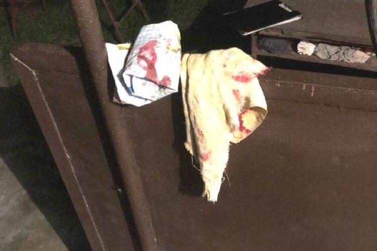 На Рівненщині «коханець» влаштував жінці розбірки через ревнощі: за матір заступився син і отримав два удари ножем (фото)