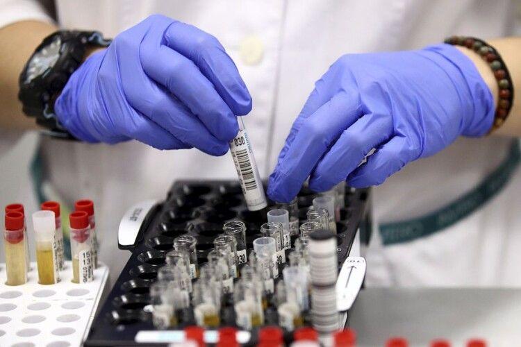 В Україні 1 785 нових випадків захворювання на COVID-19. На Волині - 63