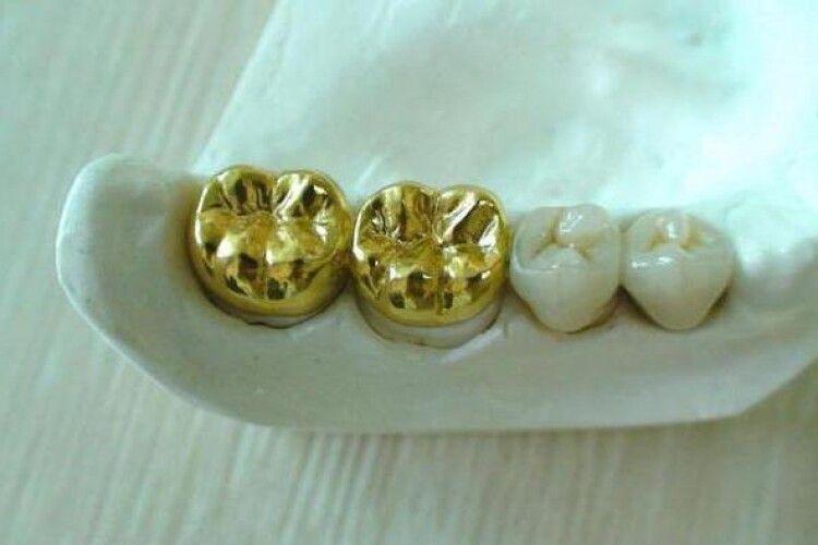 Стоматолога з Рівненщини підозрюють у крадіжці золота для протезів