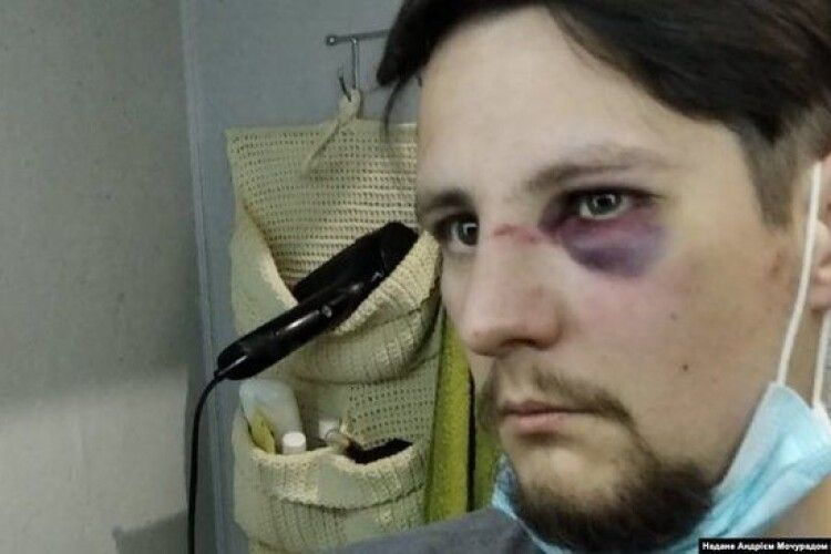 Поліцейському з Ковеля, який брав участь у побитті ветеранів АТО у Львові, повідомили про підозру в хуліганстві