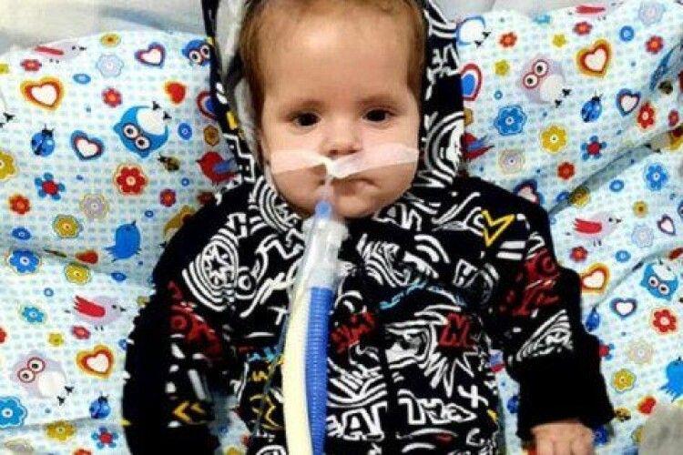 Вперше в Україні львівські хірурги вживили немовляті стимулятор нерва діафрагми