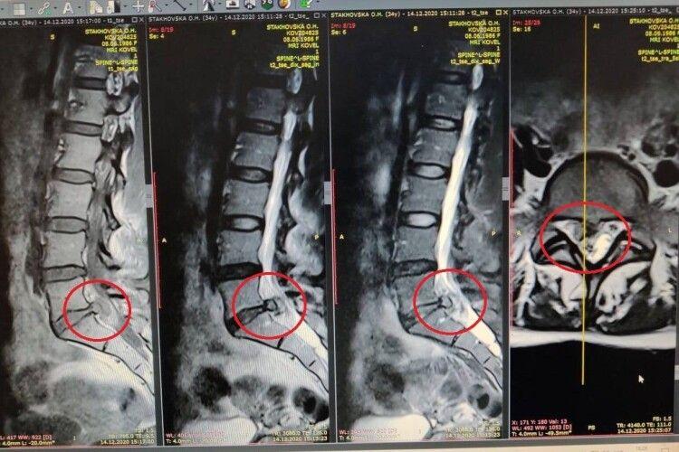 Через фізичне навантаження «вискочила» грижа: ковельські медики врятували від інвалідності волинянина (Фото 18+)