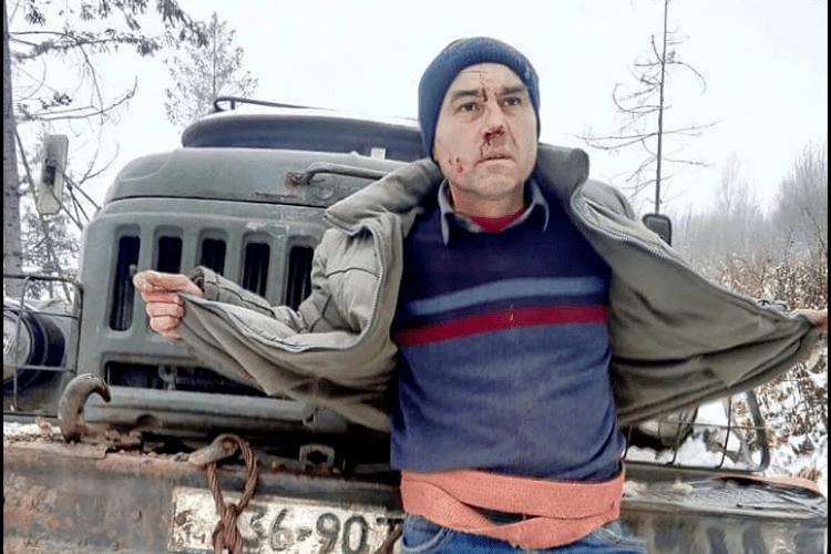 Прив'язали до вантажівки: чоловіки, які незаконно рубали ліс, познущалися над журналістом (Фото, відео)