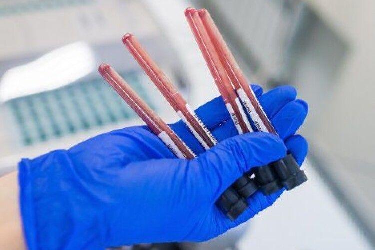 Лабораторний центр МОЗ: виявлений у Києві коронавірус не той, що у Китаї