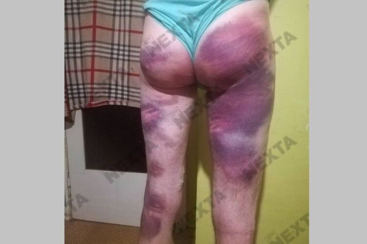 Тіло, як суцільне місиво: у якому стані потрапляють заарештовані білоруси до лікарні