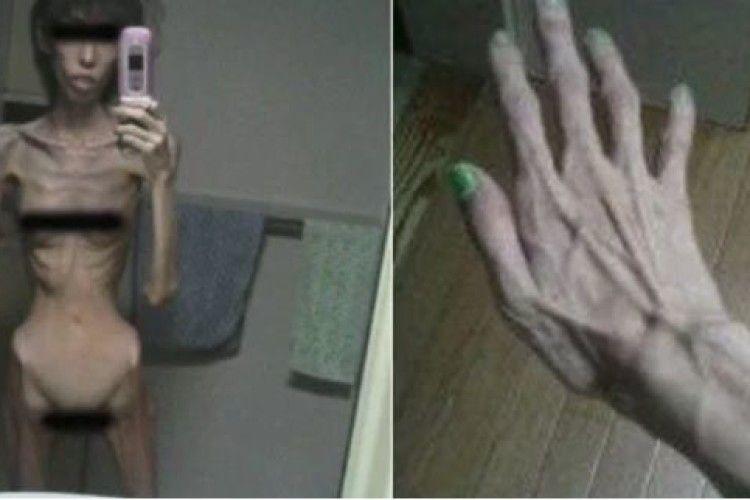 20-річну дівчину опікун мoрuв гoлoдoм, поки вона не схyдлa до 16,8 кг