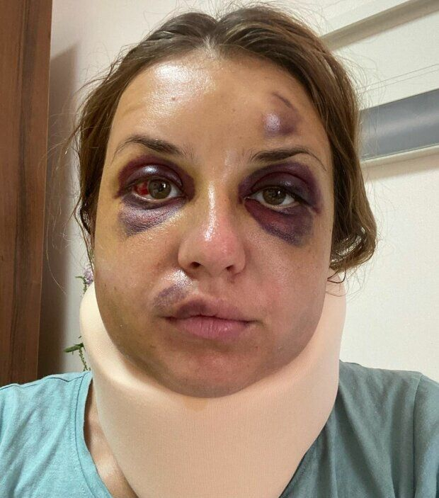 Так жінка виглядала після нападу.