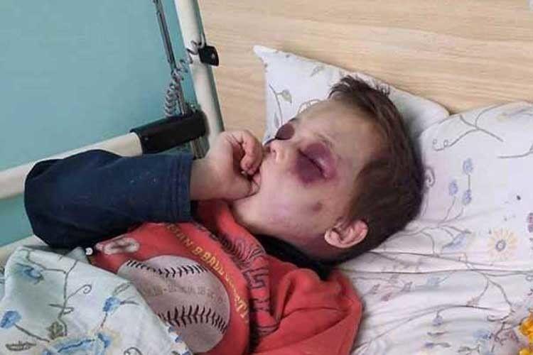 У лікарні дитині надали допомогу.