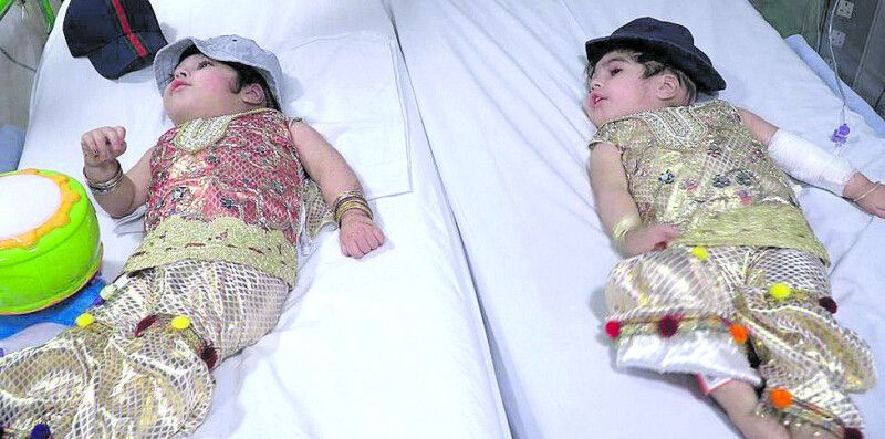 Тепер у кожної з близнючок – своє ліжечко і свій капелюшок.